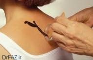زالو درمانی کاربردها