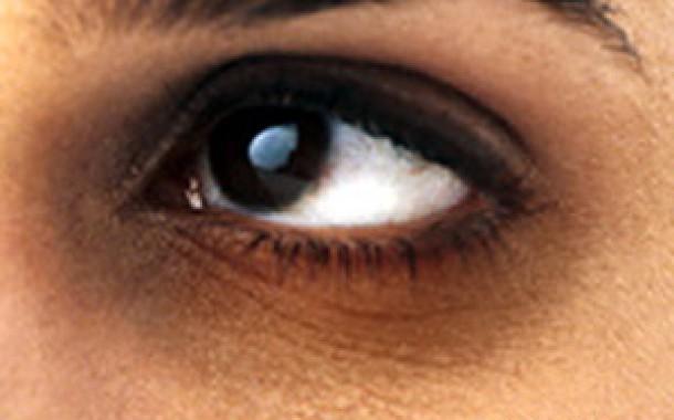 سیاهی دور چشم درمان سنتی خانگی