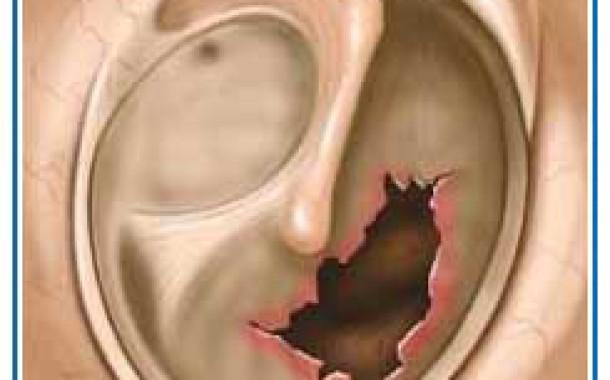 پارگي پرده گوش علت ها علایم نشانه ها درمان
