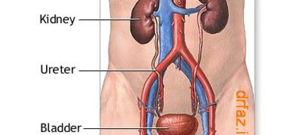 بادکش کلیه درمان عفونت ادراری فشار خون سنگ