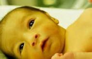 حجامت زردی نوزاد در قم