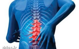 بادکش دیسک درمان سیاتیک تقویت کمر اسپاسم