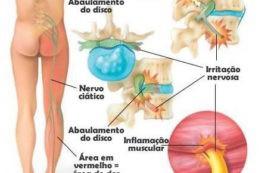 بادکش سیاتیک درمان خواب رفتگی خستگی پا