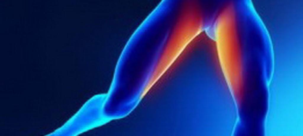 بادکش کشاله ران بادکش درمانی درمان تکمیلی ناتوانی جنسی