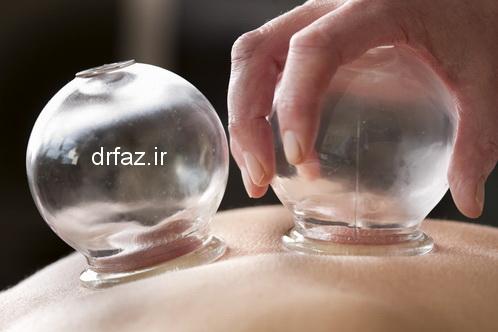مزایای حجامت به دیگر روشهای درمانی
